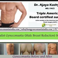 Best Gynecomastia Delhi India