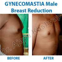 Best Gynecomastia Delhi India