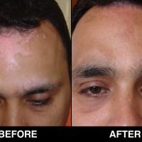 Dr Munish Paul (specialist in dermatologist)