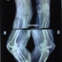 Portable X-ray Services Dadar West, Mumbai